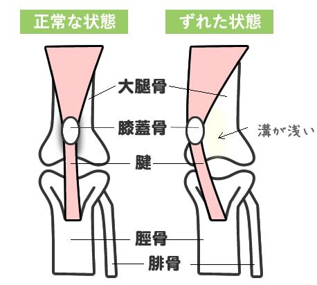 膝蓋骨脱臼の症状
